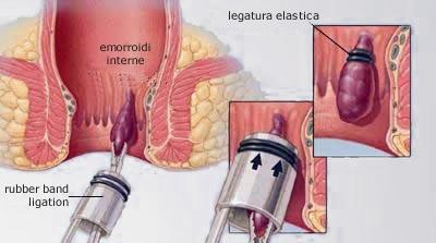 Eliminazione di emorroidi di vene